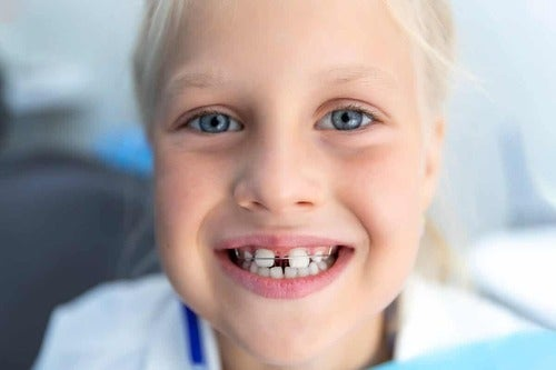 Bambina con diastema dentale.