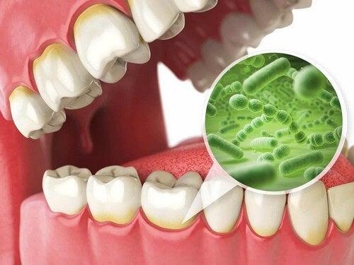 Batteri del cavo orale.