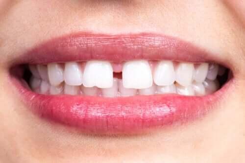 Diastema dentale: di cosa si tratta?