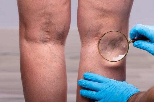 Nefropatia membranosa ed edema alle gambe.