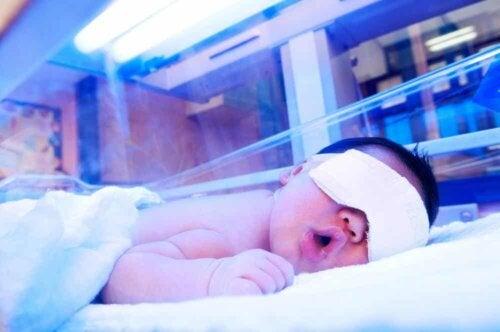 Fototerapia per il trattamento dell'ittero neonatale.