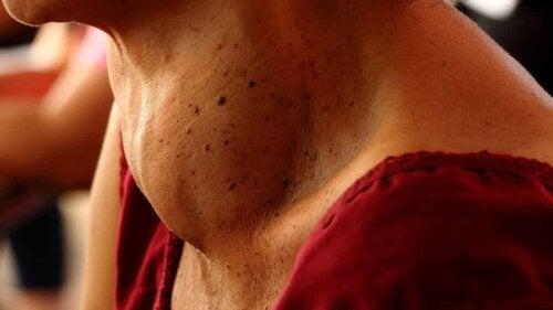 Tiroxina: ingrossamento della tiroide.
