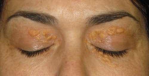 Xantelasmi: quelle macchie bianche intorno agli occhi